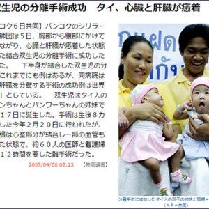 タイの結合双生児パンタワンちゃん&パンワートちゃんは今?【TVウォッチング】