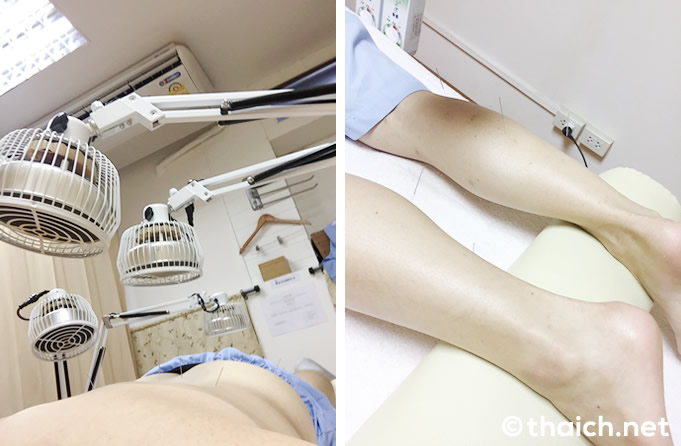 プロムポン「ジャパニーズ鍼灸クリニック」で鍼治療