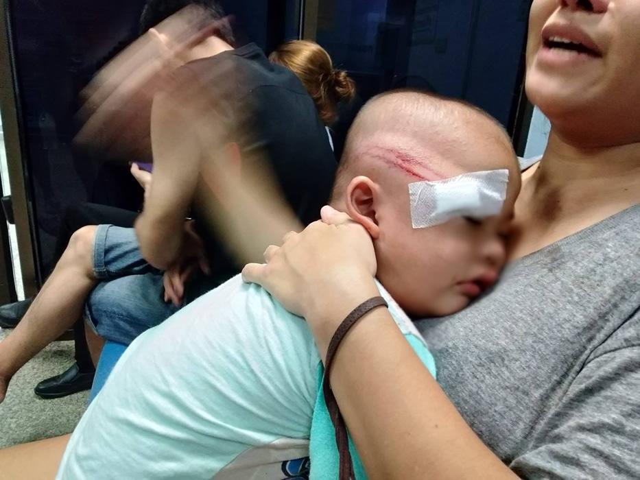 ボランティア警察、2歳の子供を警棒で殴り重傷